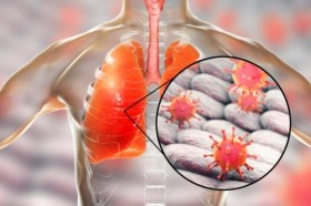 5 căn bệnh gây tử vong cao nhất và cách phòng chống