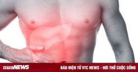 Dấu hiệu cảnh báo bệnh gan