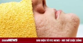 5 nguyên nhân khiến bạn bị lỗ chân lông to