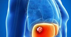 Phát hiện ca bệnh ung thư gan khi mới 20 tuổi, bác sĩ lưu ý đối tượng cần tầm soát sớm