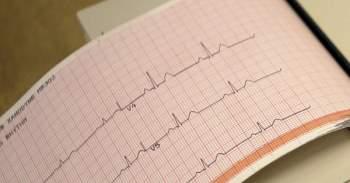 25% bệnh nhân mắc COVID-19 thể nặng bị bệnh tim mạch