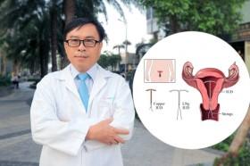 Bác sĩ sản khoa lý giải việc bé chào đời mặc dù mẹ đặt vòng tránh thai