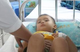 Bé trai 3 tuổi vỡ lá lách khi ngủ gật trên xe máy
