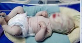 Thêm 1 bé sơ sinh mắc bệnh hiếm, toàn thân bọc vảy trắng nhiều vết nứt