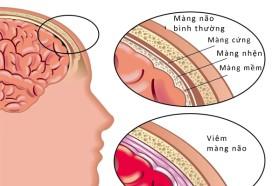 Căn bệnh viêm màng não nguy hiểm như thế nào?