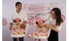 Cặp song sinh Trúc Nhi - Diệu Nhi xuất viện sau 84 ngày được đại phẫu tách rời