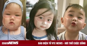 Dân mạng phát sốt với loạt ảnh em bé cháy nắng, in hình khẩu trang trên mặt