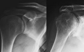 Chấn thương khớp vai thường ẩn mình dưới những triệu chứng đau nhức thông thường