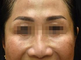 Tiêm độc tố botulinum để làm đẹp da
