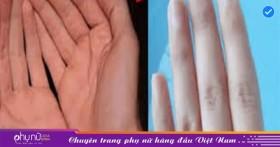 Ngón tay con gái có 4 dấu hiệu này, một đời an nhàn, giàu sang phú quý