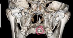 Người đàn ông có răng mọc ngầm chọc thủng hốc mũi, phá hủy xương hàm