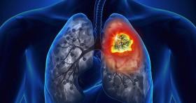 Nhận biết ung thư phổi từ những biểu hiện tưởng thông thường