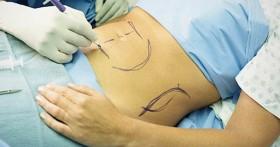 Bác sĩ chỉ ra quy trình hút mỡ giảm cân an toàn