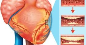 4 dấu hiệu bệnh tim mạch vành kêu cứu, đừng bỏ qua vì có thể cướp đi tính mạng