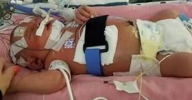 Trẻ tử vong chỉ sau 18 ngày chào đời gây chấn động thế giới: Nụ hôn thần chết vẫn tái diễn