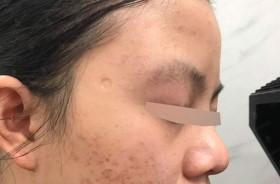 Bí quyết lấp đầy sẹo rỗ nhanh an toàn không tổn thương vùng da khác