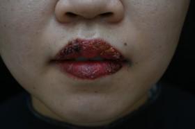 Bệnh viện da liễu cảnh báo về trường hợp tai biến sau xăm môi tại Spa