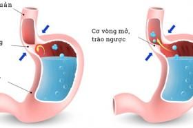 Trào ngược dạ dày có gây hôi miệng?
