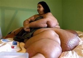 """Từng bị gọi là """"sát thủ nửa tấn"""", người phụ nữ giảm liền 363kg, hình ảnh hiện tại gây ấn tượng"""