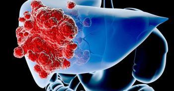 Căn bệnh nhiều người mắc mà không biết, ai ngờ có thể âm thầm tiến triển thành ung thư gan