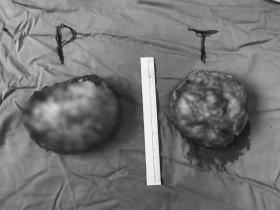 Biến dạng ngực sau khi đặt túi ngực nhân tạo 1 tuần